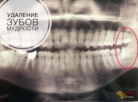 Удаление зубов мудрости - фото