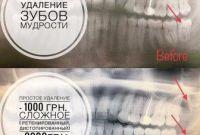 Удаление зубов мудрости - фото 0